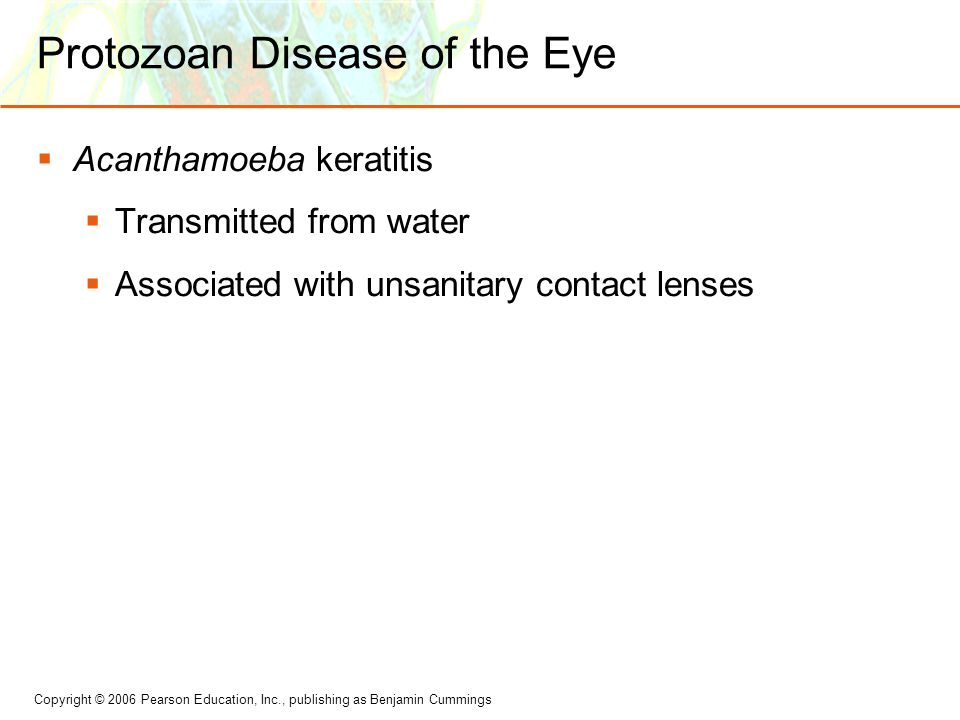 Copyright © 2006 Pearson Education, Inc., publishing as Benjamin Cummings Protozoan Disease of the Eye  Acanthamoeba keratitis  Transmitted from wat