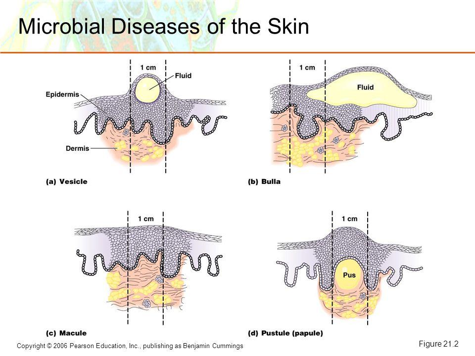 Copyright © 2006 Pearson Education, Inc., publishing as Benjamin Cummings Microbial Diseases of the Skin Figure 21.2