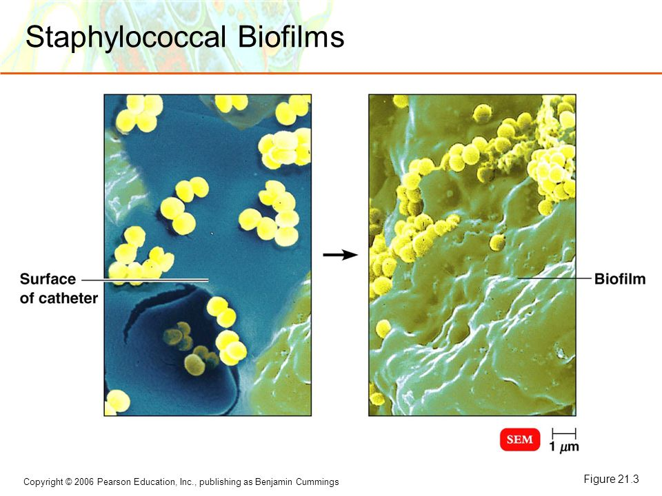 Copyright © 2006 Pearson Education, Inc., publishing as Benjamin Cummings Staphylococcal Biofilms Figure 21.3