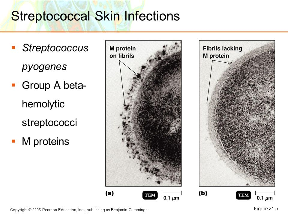 Copyright © 2006 Pearson Education, Inc., publishing as Benjamin Cummings Streptococcal Skin Infections  Streptococcus pyogenes  Group A beta- hemol
