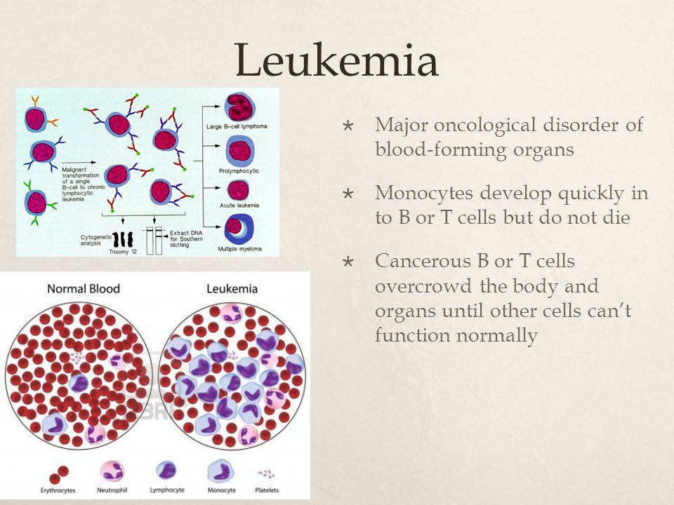 Leukemia  Major oncological disorder of blood-forming organs  Monocytes develop quickly in to B or T cells but do not die  Cancerous B or T cells o