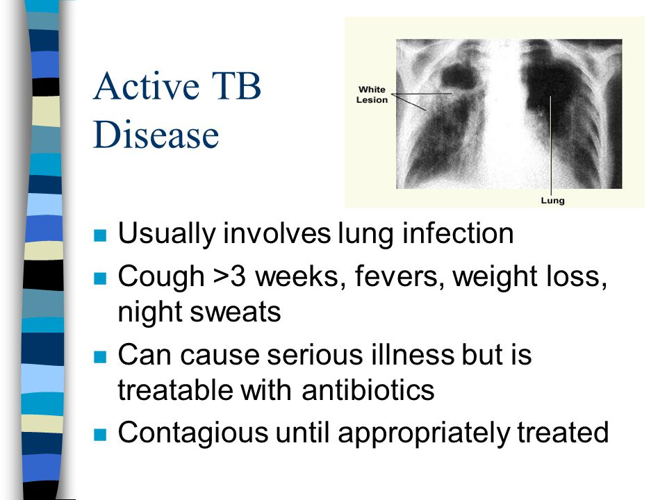 Active TB Disease n Usually involves lung infection n Cough >3 weeks, fevers, weight loss, night sweats n Can cause serious illness but is treatable w