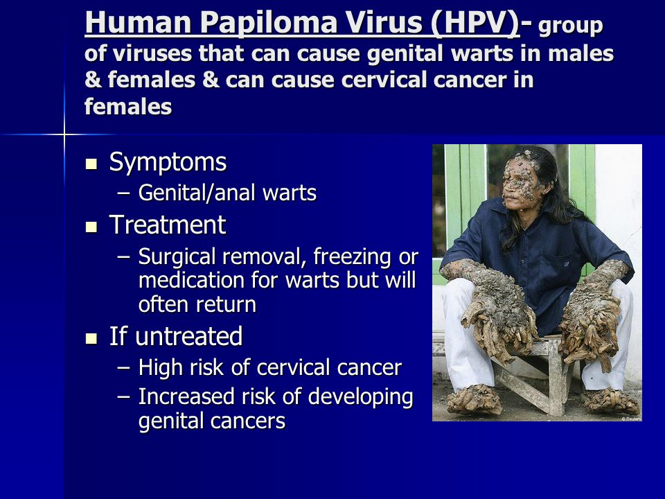 Genital Herpes Symptoms Symptoms -Type 1-cold sores & blisters -Type 2-mild or no symptoms If untreated If untreated –Infections of liver, brain, skin, eyes, & mouth –Death