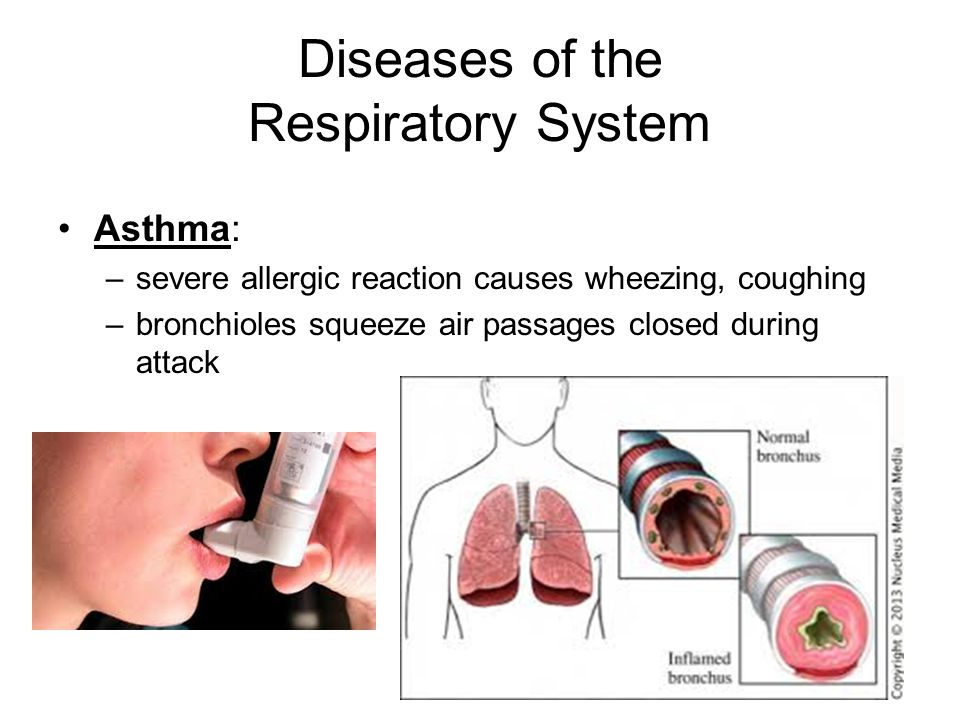 Diseases of the Respiratory System Asthma: –severe allergic reaction causes wheezing, coughing –bronchioles squeeze air passages closed during attack