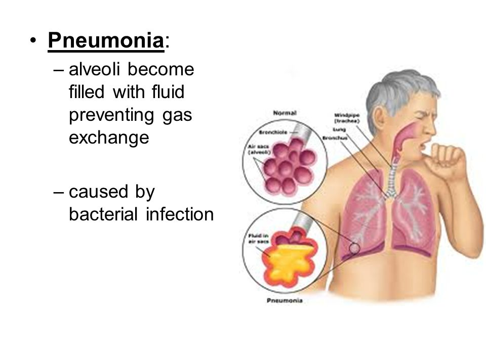 Pneumonia: –alveoli become filled with fluid preventing gas exchange –caused by bacterial infection