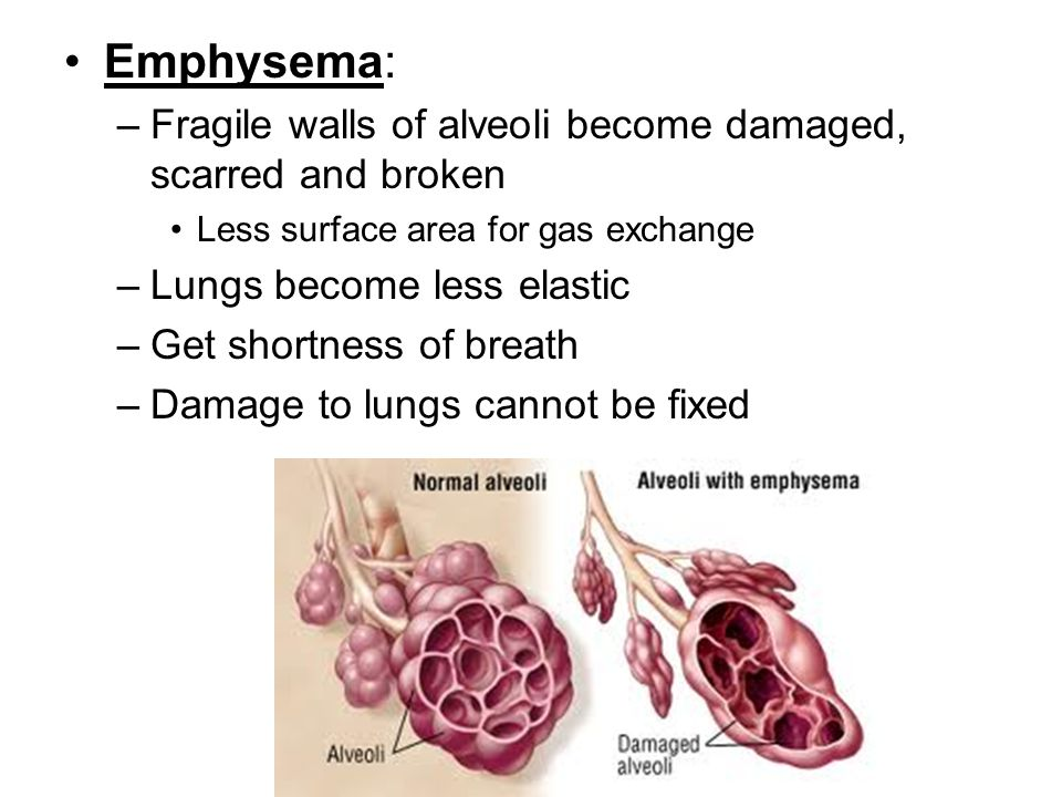 Emphysema: –Fragile walls of alveoli become damaged, scarred and broken Less surface area for gas exchange –Lungs become less elastic –Get shortness o