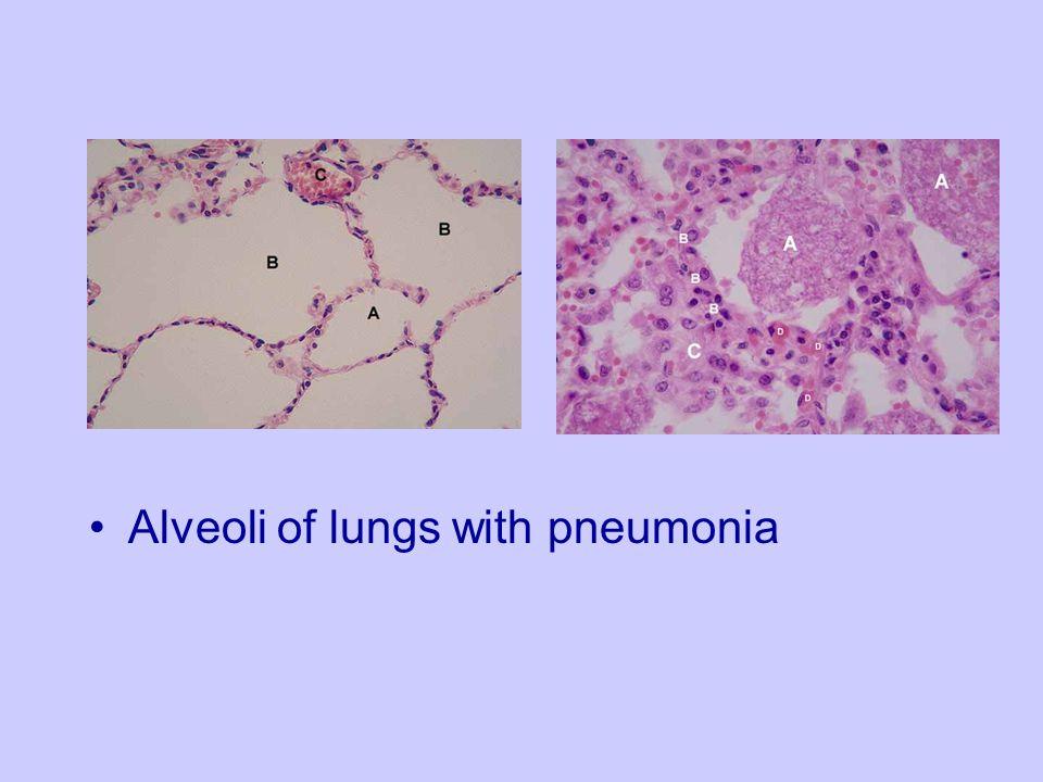 Alveoli of lungs with pneumonia