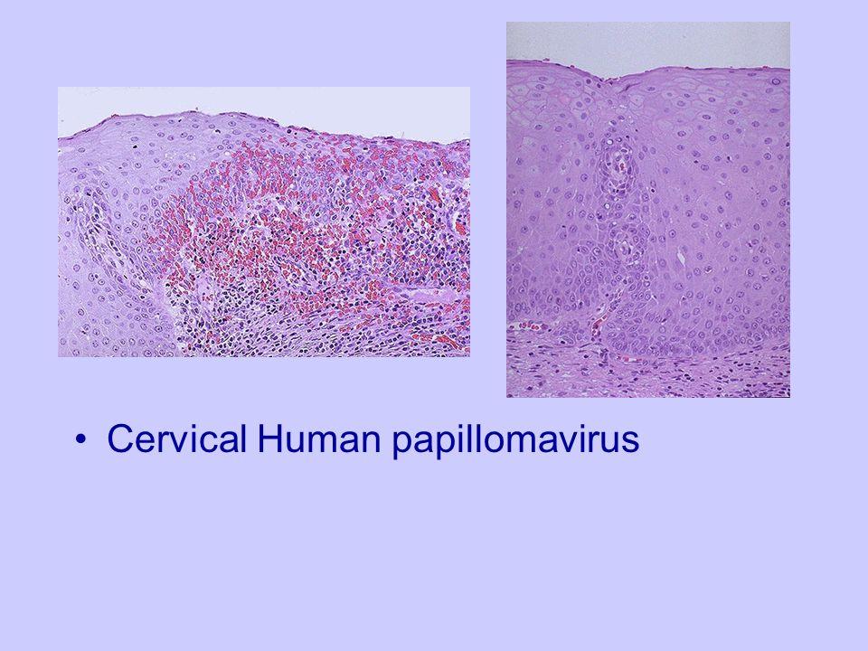Cervical Human papillomavirus