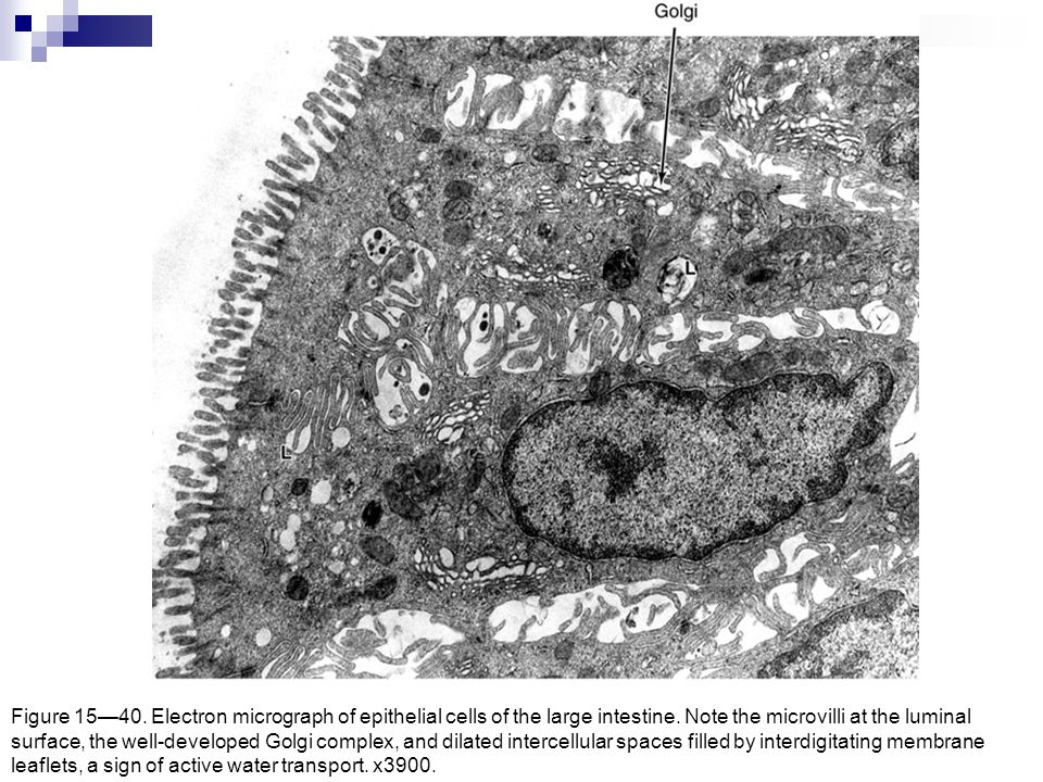 Figure 15—40. Electron micrograph of epithelial cells of the large intestine. Note the microvilli at the luminal surface, the well-developed Golgi com