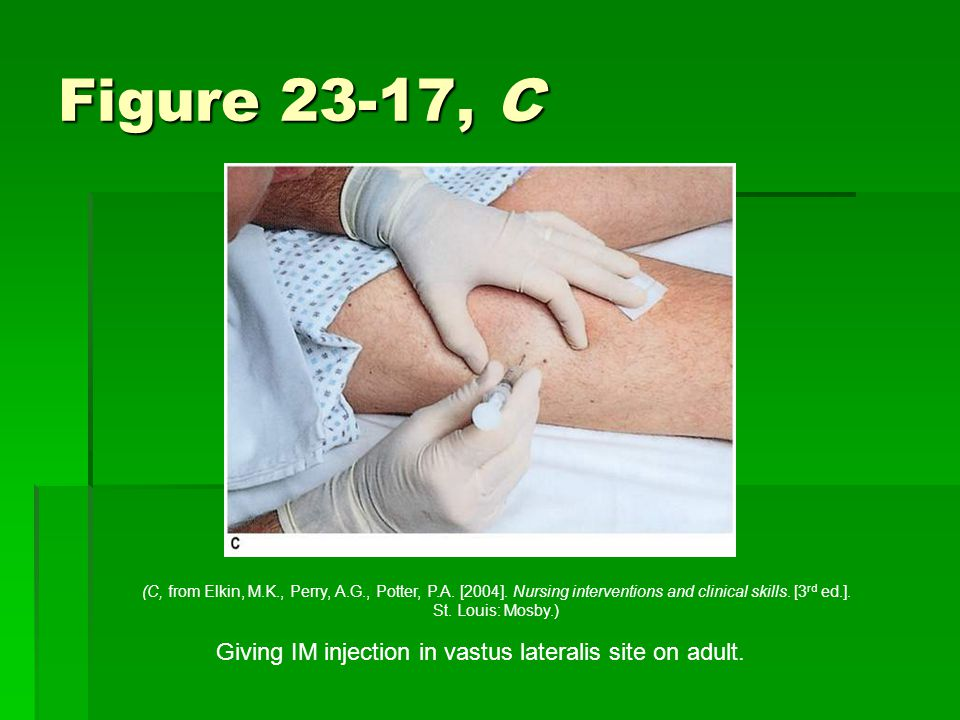 Figure 23-17, C Giving IM injection in vastus lateralis site on adult.