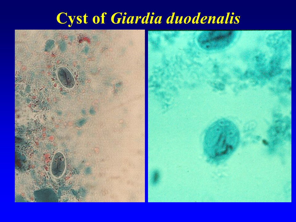 Cyst of Giardia duodenalis