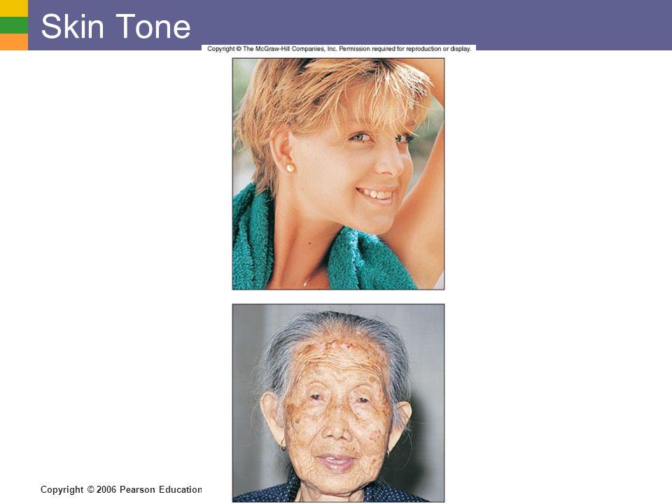 Copyright © 2006 Pearson Education, Inc., publishing as Benjamin Cummings Skin Tone