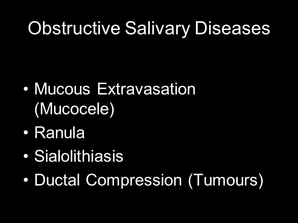 Obstructive Salivary Diseases Mucous Extravasation (Mucocele) Ranula Sialolithiasis Ductal Compression (Tumours)
