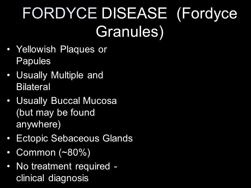 Salivary Gland Swellings