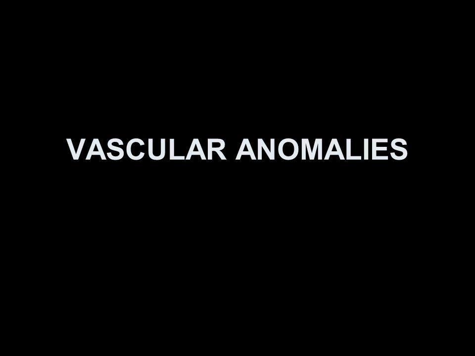 VASCULAR ANOMALIES