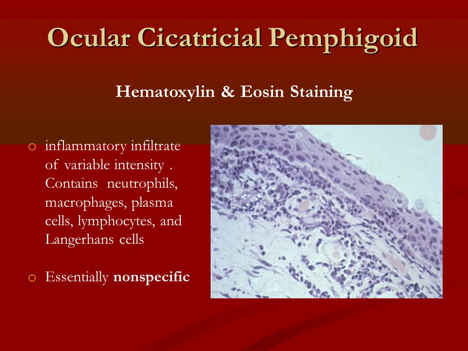 Ocular Cicatricial Pemphigoid Hematoxylin & Eosin Staining o inflammatory infiltrate of variable intensity. Contains neutrophils, macrophages, plasma