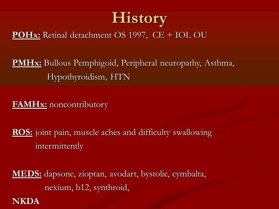 History POHx: Retinal detachment OS 1997, CE + IOL OU PMHx: Bullous Pemphigoid, Peripheral neuropathy, Asthma, Hypothyroidism, HTN Hypothyroidism, HTN