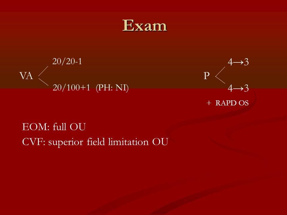 Exam VA P 20/20-1 20/100+1 (PH: NI) 4→3 + RAPD OS EOM: full OU CVF: superior field limitation OU