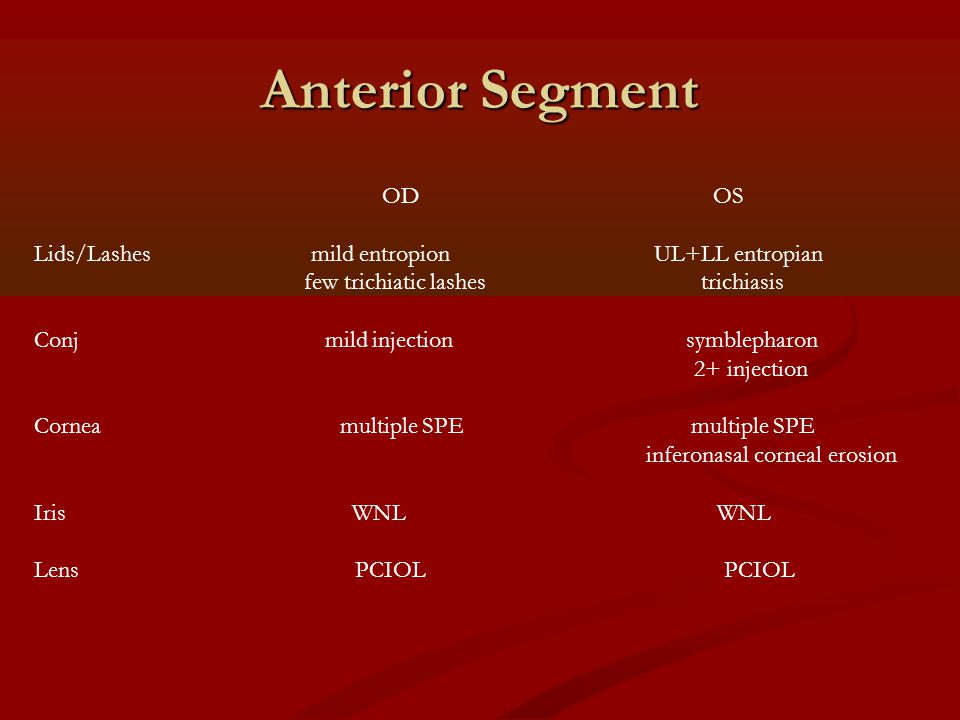 Anterior Segment OD OS Lids/Lashes mild entropion UL+LL entropian few trichiatic lashes trichiasis Conj mild injection symblepharon 2+ injection Corne