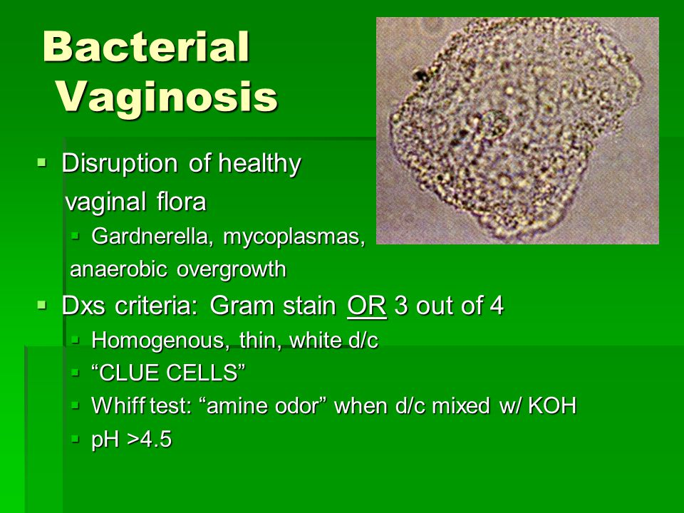 Bacterial Vaginosis  Disruption of healthy vaginal flora vaginal flora  Gardnerella, mycoplasmas, anaerobic overgrowth  Dxs criteria: Gram stain OR