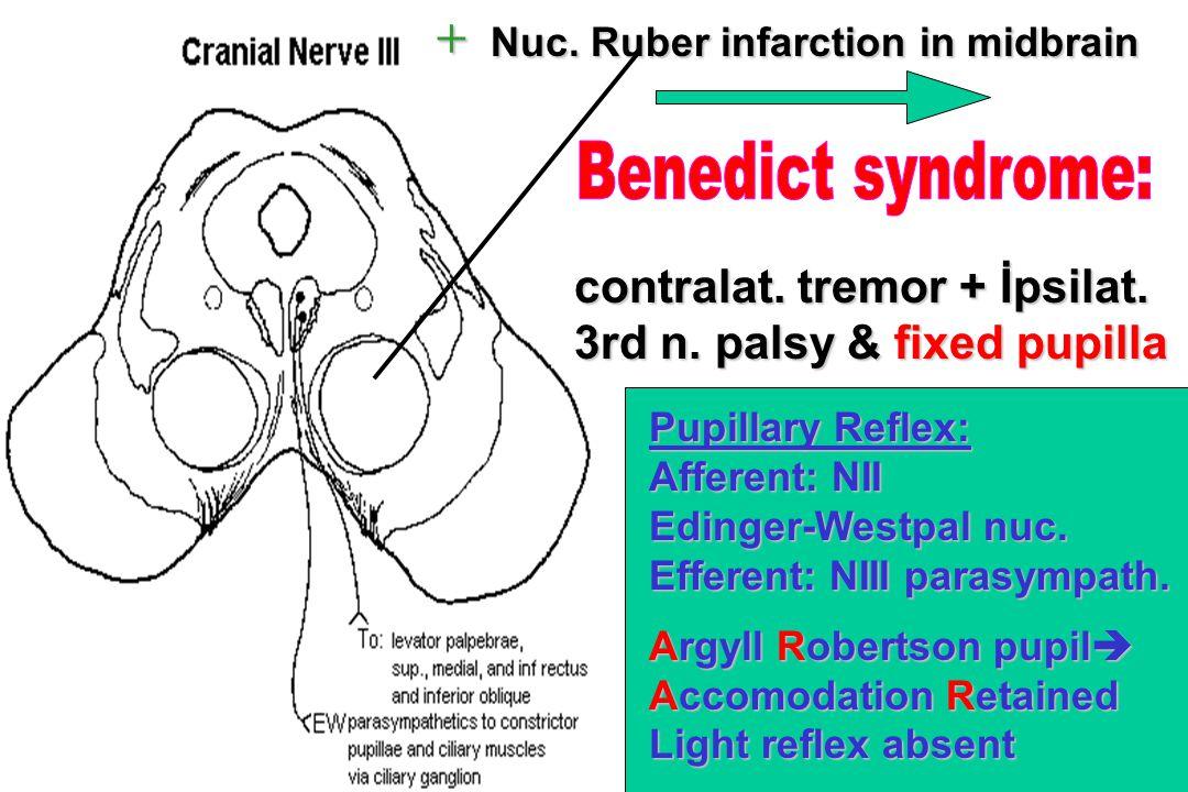 + Nuc. Ruber infarction in midbrain contralat. tremor + İpsilat. 3rd n. palsy & fixed pupilla Pupillary Reflex: Afferent: NII Edinger-Westpal nuc. Eff