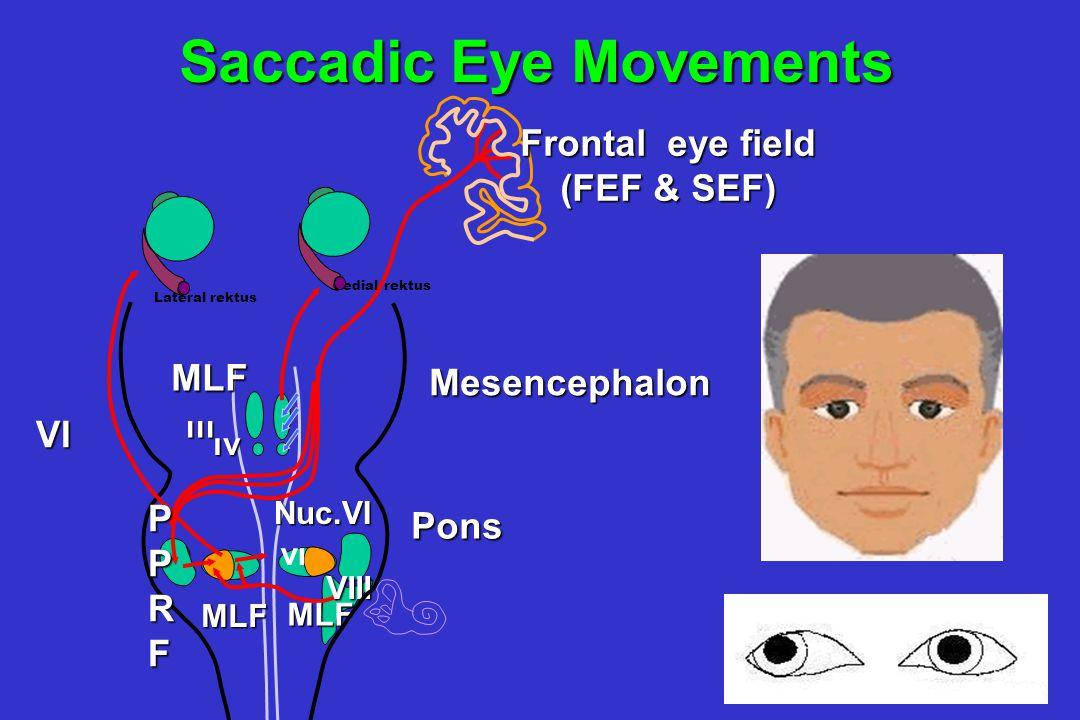 VIII Pons Mesencephalon VI VI MLF MLF MLF Nuc.VI PPRF ıv MLF ııı Lateral rektus Medial rektus vı Saccadic Eye Movements Frontal eye field (FEF & SEF)