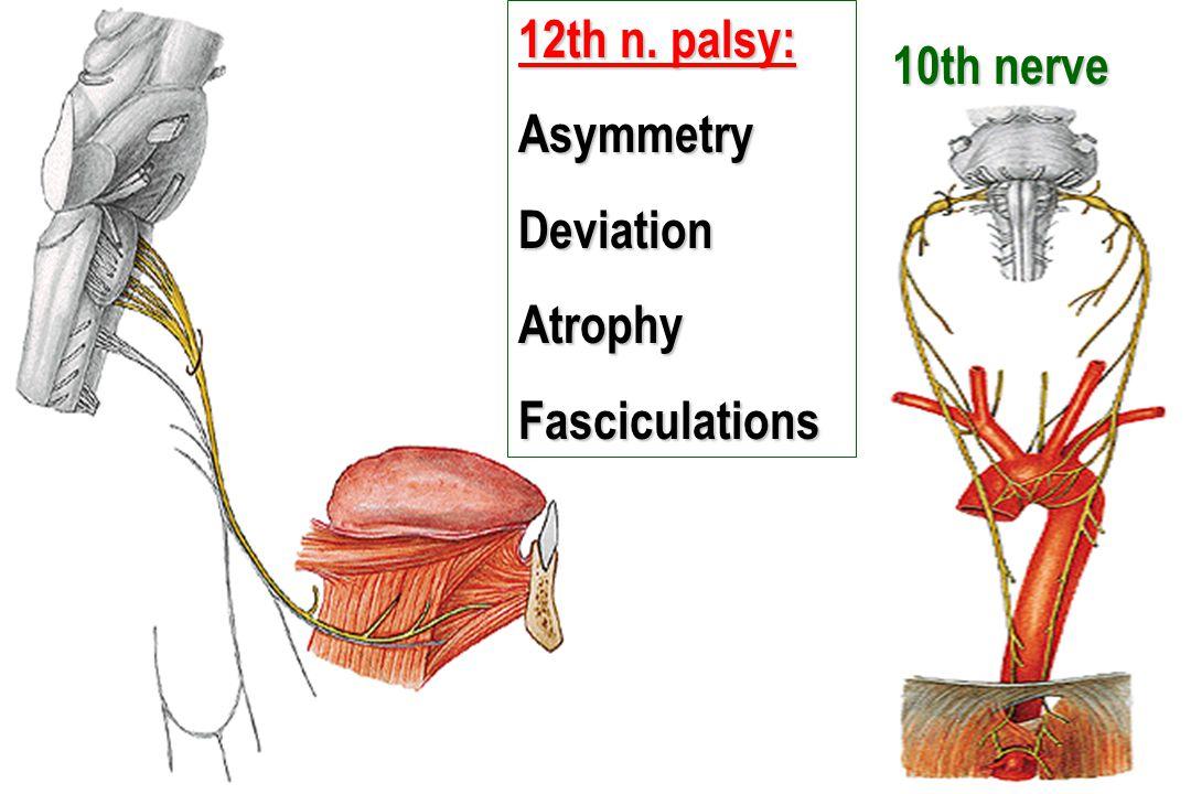 12th n. palsy: AsymmetryDeviationAtrophyFasciculations 10th nerve 10th nerve