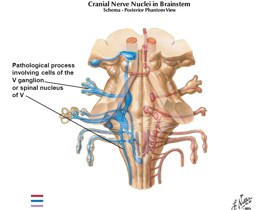 Pathological process involving cells of the V ganglion or spinal nucleus of V