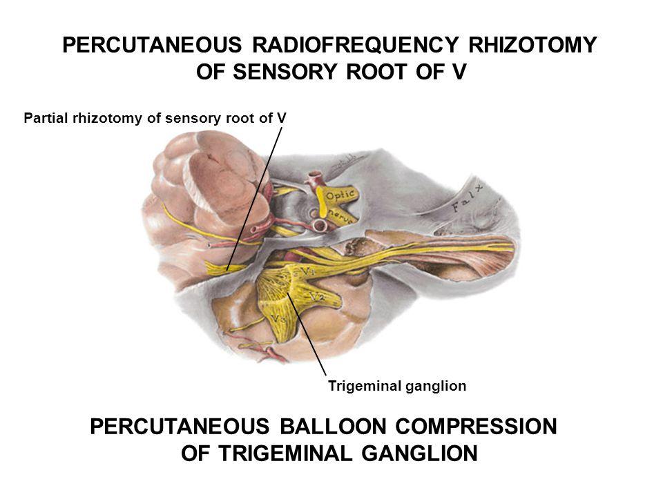 PERCUTANEOUS RADIOFREQUENCY RHIZOTOMY OF SENSORY ROOT OF V Partial rhizotomy of sensory root of V PERCUTANEOUS BALLOON COMPRESSION OF TRIGEMINAL GANGL
