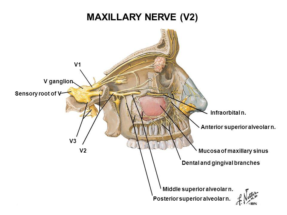 V ganglion V1 V2 V3 Sensory root of V Infraorbital n. Anterior superior alveolar n. Mucosa of maxillary sinus Dental and gingival branches Middle supe