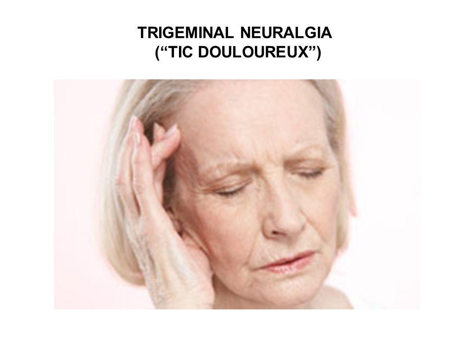 """TRIGEMINAL NEURALGIA (""""TIC DOULOUREUX"""")"""
