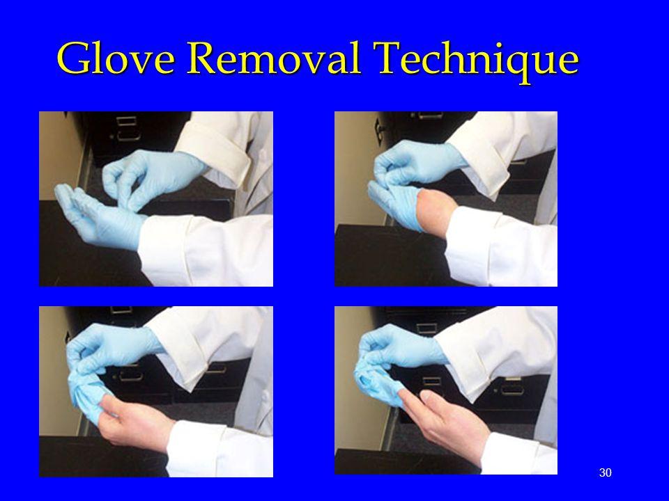 30 Glove Removal Technique