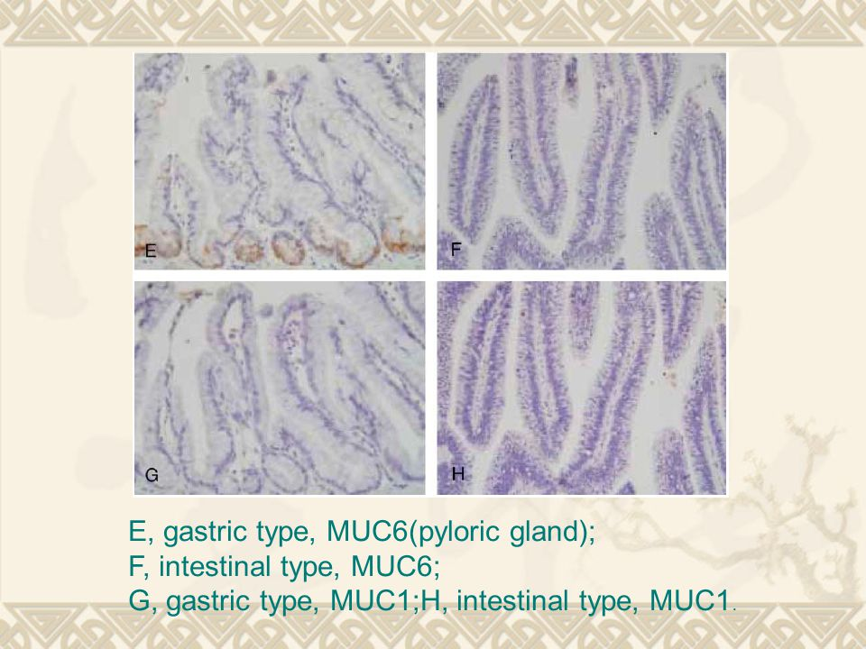 E, gastric type, MUC6(pyloric gland); F, intestinal type, MUC6; G, gastric type, MUC1;H, intestinal type, MUC1.
