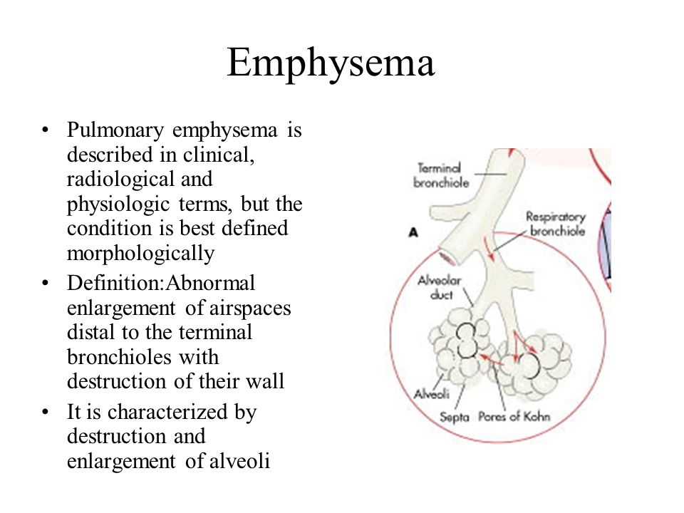Emphysema Pulmonary emphysema is described in clinical, radiological and physiologic terms, but the condition is best defined morphologically Definiti