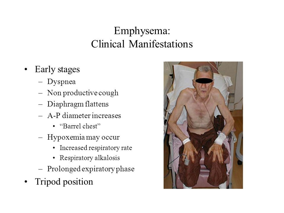 "Emphysema: Clinical Manifestations Early stages –Dyspnea –Non productive cough –Diaphragm flattens –A-P diameter increases ""Barrel chest"" –Hypoxemia m"