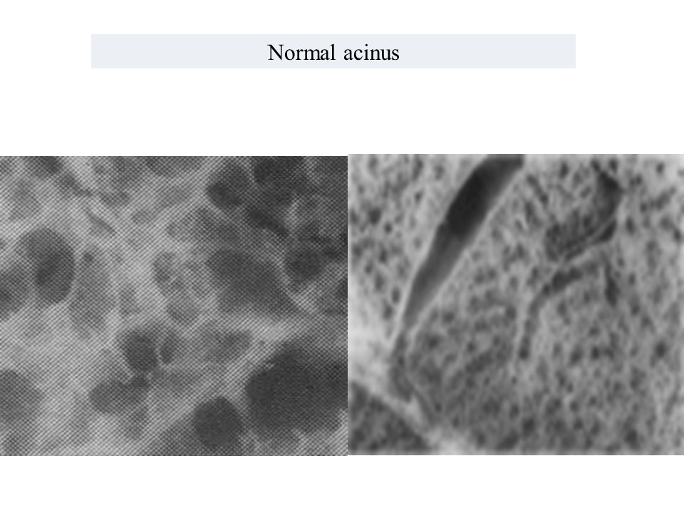Normal acinus