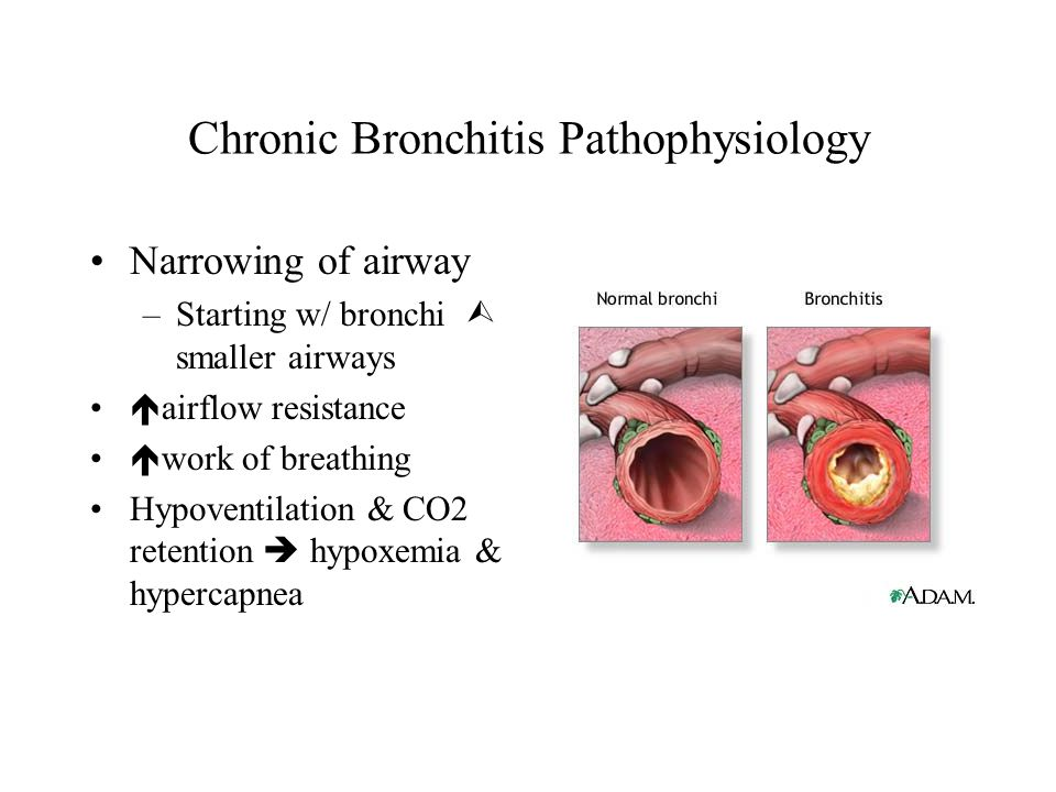 Chronic Bronchitis Pathophysiology Narrowing of airway –Starting w/ bronchi  smaller airways  airflow resistance  work of breathing Hypoventilation