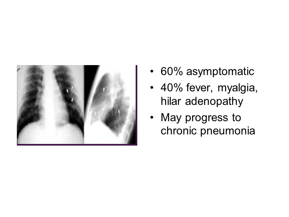60% asymptomatic 40% fever, myalgia, hilar adenopathy May progress to chronic pneumonia