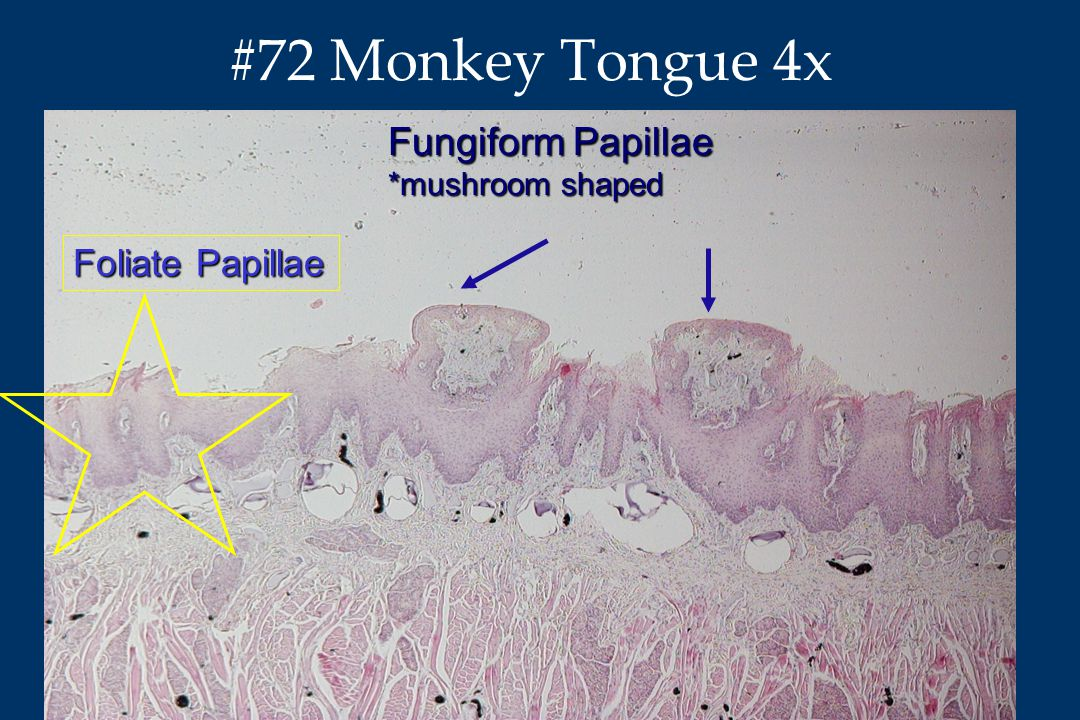 Anatomy & Neurobiology #72 Monkey Tongue 4x Fungiform Papillae *mushroom shaped Foliate Papillae
