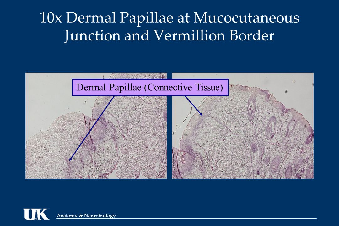 Anatomy & Neurobiology 10x Dermal Papillae at Mucocutaneous Junction and Vermillion Border Dermal Papillae (Connective Tissue)