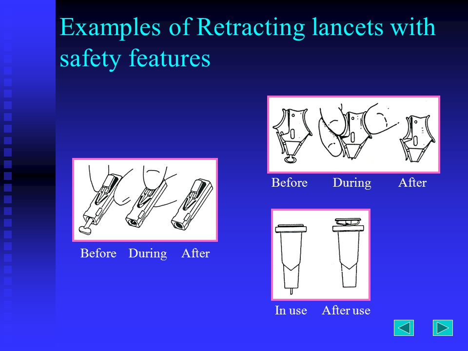 Examples of Retracting lancets with safety features Before During After In use After use
