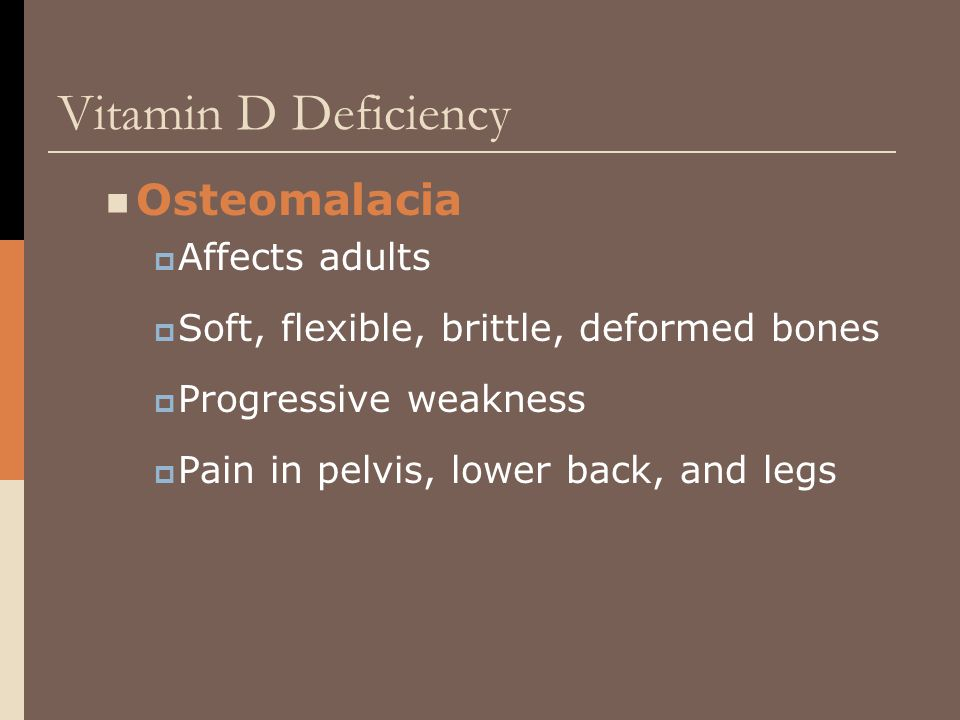 Vitamin D Deficiency Osteomalacia  Affects adults  Soft, flexible, brittle, deformed bones  Progressive weakness  Pain in pelvis, lower back, and