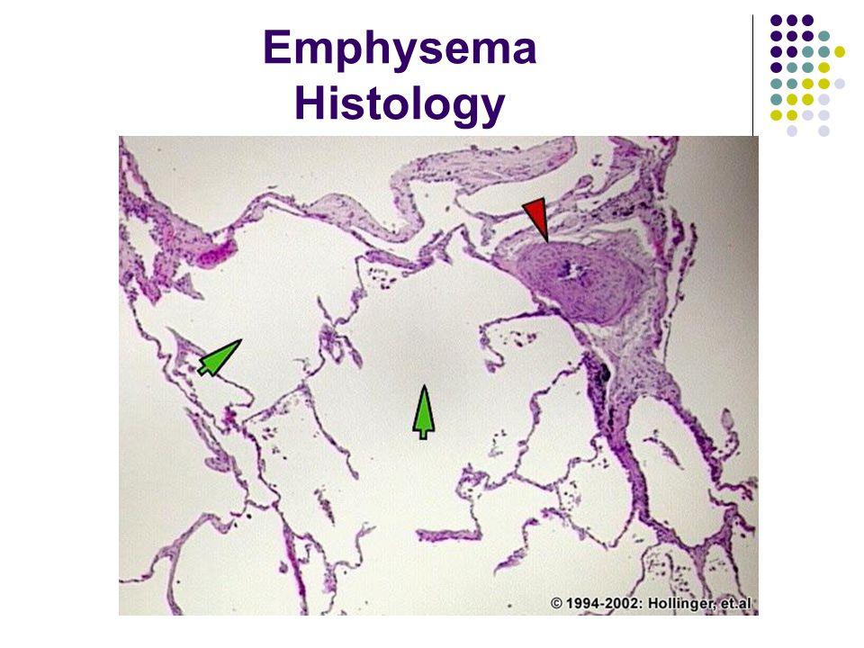 Emphysema Histology