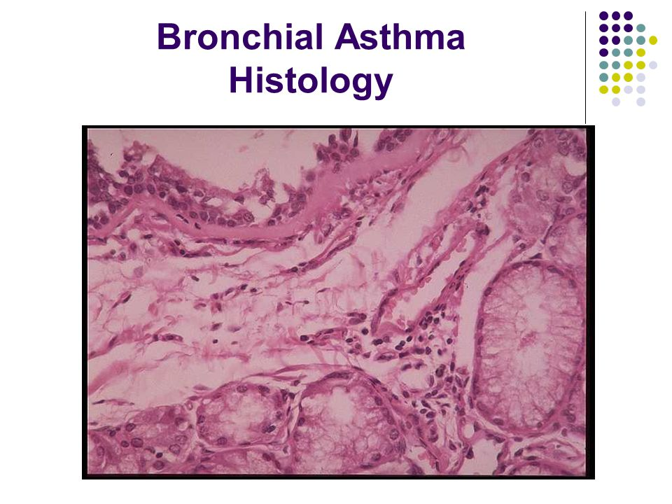Bronchial Asthma Histology