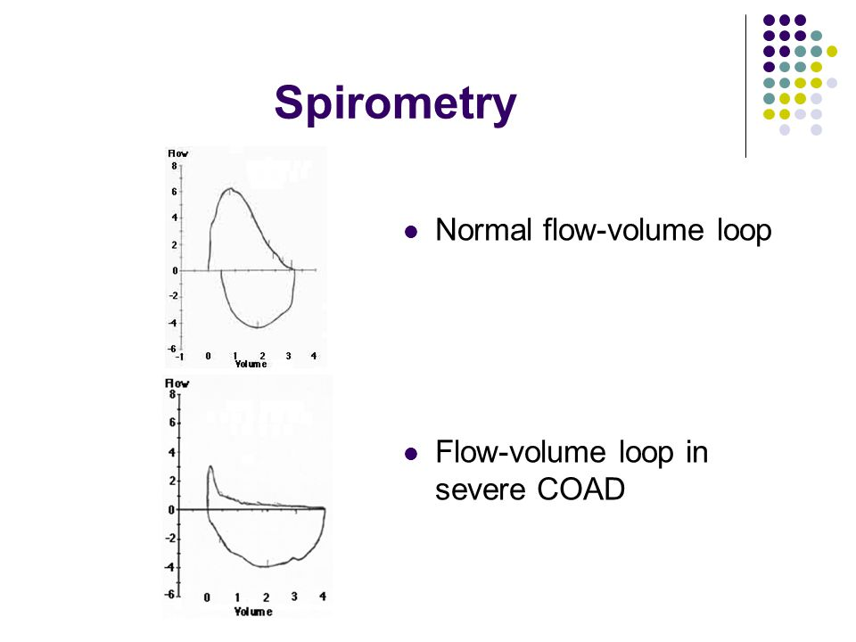 Spirometry Normal flow-volume loop Flow-volume loop in severe COAD