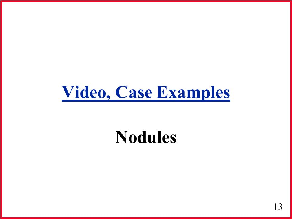 13 Video, Case Examples Nodules