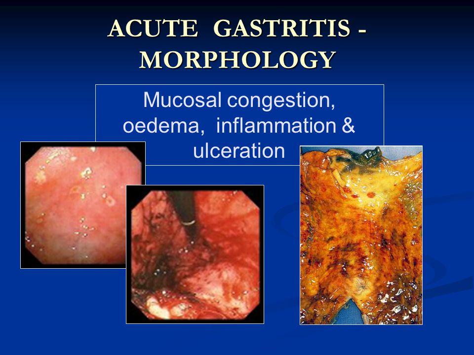Mucosal congestion, oedema, inflammation & ulceration ACUTE GASTRITIS - MORPHOLOGY