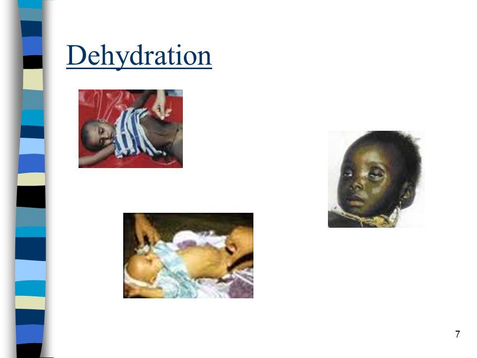 Dehydration 7