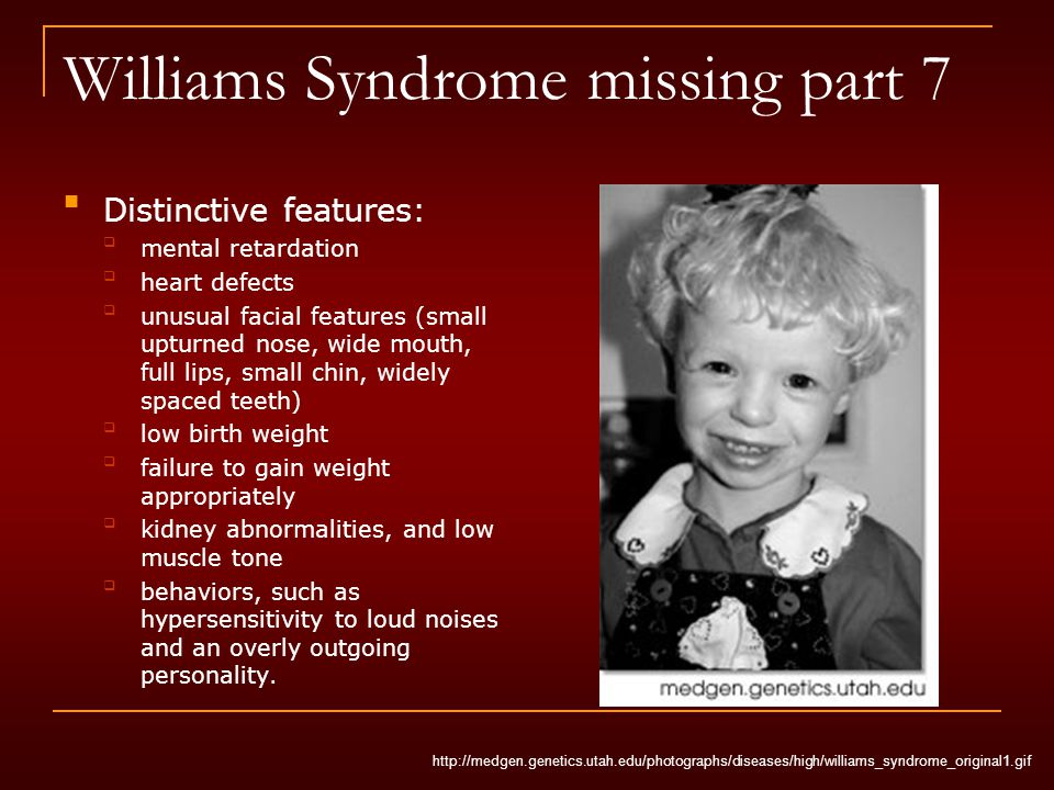 Williams Syndrome missing part 7 Distinctive features: mental retardation heart defects unusual facial features (small upturned nose, wide mouth, full lips, small chin, widely spaced teeth) low birth weight failure to gain weight appropriately kidney abnormalities, and low muscle tone behaviors, such as hypersensitivity to loud noises and an overly outgoing personality.