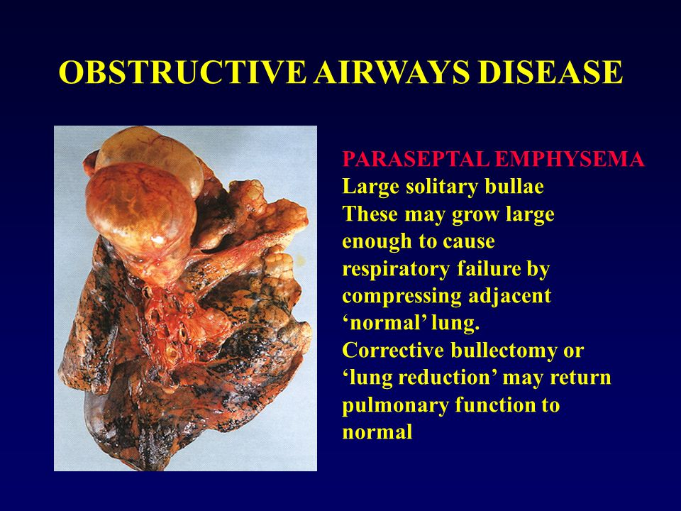 OBSTRUCTIVE AIRWAYS DISEASE PARASEPTAL EMPHYSEMA Large solitary bullae These may grow large enough to cause respiratory failure by compressing adjacen